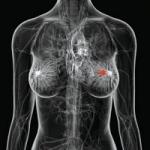 30 ஆண்டுகள் தொடர்ந்து இரவு பணிபுரியும் பெண்களுக்கு மார்பக புற்றுநோய்-ஆய்வில் தகவல்