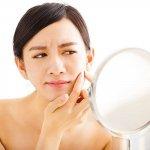 அழகைக் கெடுக்கும் முகப்பரு, தவிர்க்க சிம்பிள் டிப்ஸ்! #avoidpimples