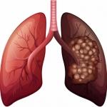 நுரையீரல் புற்றுநோய்... எளிதாக அறியலாம் அறிகுறிகள்! #LungCancerAlert