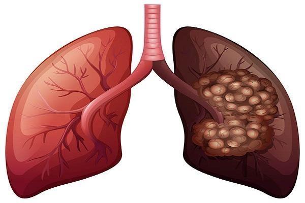 நுரையீரல் புற்றுநோய்