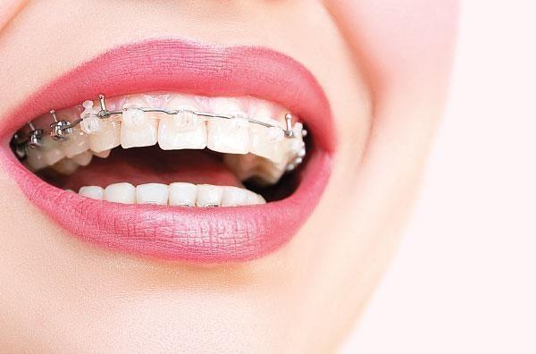 Clipping Teeth