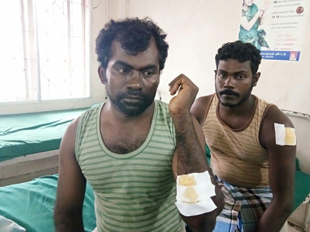 இந்திய கடற்படையினரின் தாக்குதலில் காயமடைந்த மீனவர்கள்