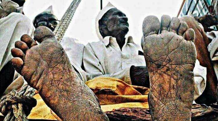 பேரணியில் கலந்துகொண்ட சோமைய்யாவின் கால்கள்