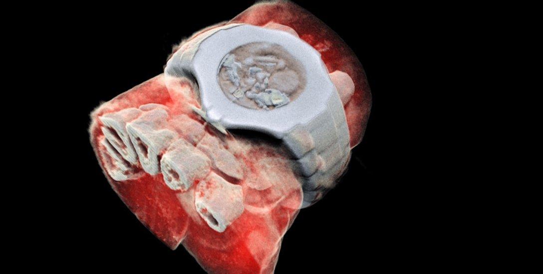 புற்றுநோய், மாரடைப்பு... எதற்கும் இனி கலரில் எடுக்கலாம் 3D எக்ஸ்-ரே! #3DColourXRay