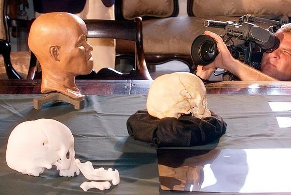 பிரேசில் தீ விபத்தில் மண்டை ஓடு எரிந்து நாசம்