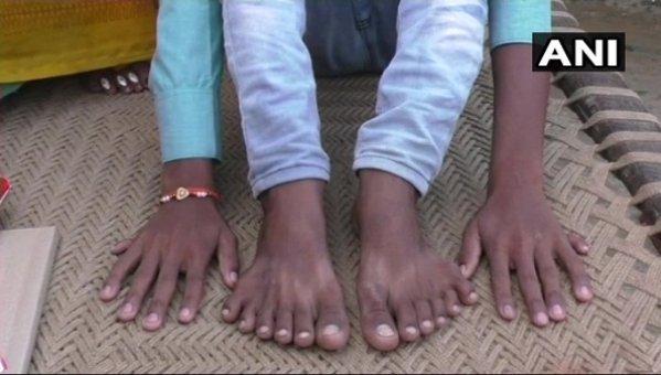 அச்சுறுத்திய உறவினர்கள்... பாதுகாத்த பெற்றோர்... 24 விரல்கள் கொண்ட சிறுவனுக்கு உதவிய போலீஸ்