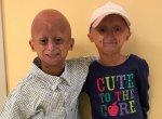 குழந்தைகளை முதியவர்களாக்கும் கொடூர மரபணுக் குறைபாடு புரோஜீரியா! #Progeria