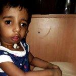 இந்தக் குழந்தைக்கு ஏன் இப்படிப்பட்ட ஒரு கொடுமையான நோய்? #NeedHelp
