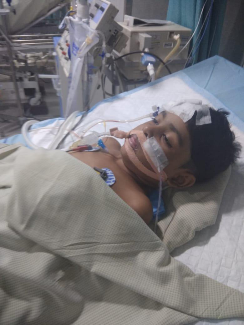 brain tumour child SaveThavathi